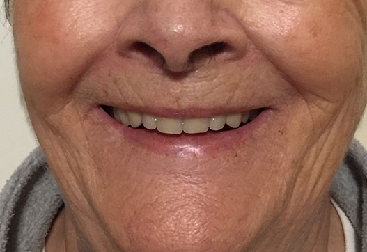 Immediate dentures smile