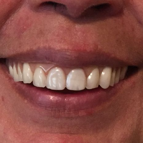 Patient+Smile+One+July+2018+Before